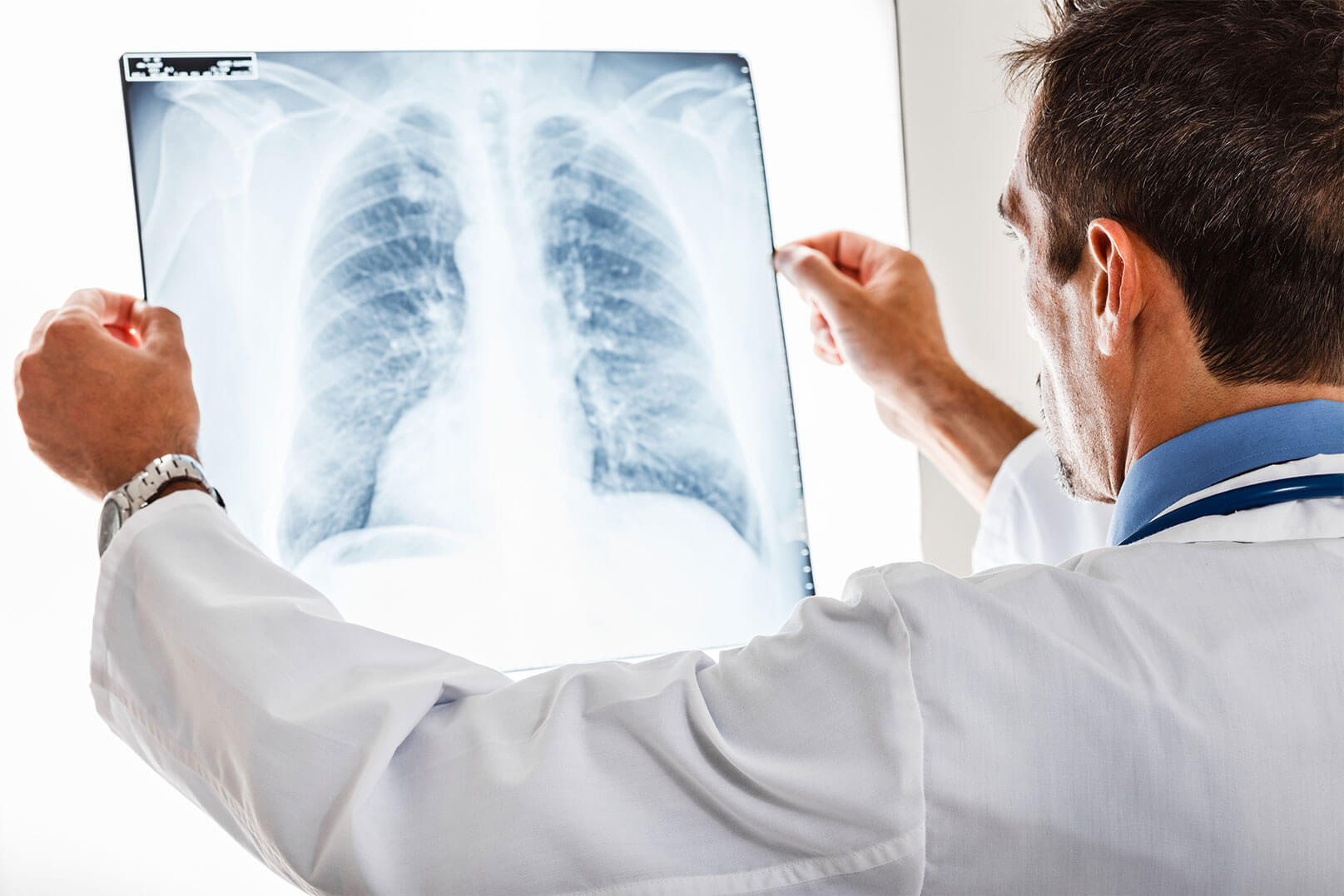 Lung cancer treatment abroad
